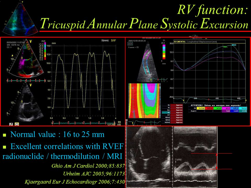 RV function: Tricuspid Annular Plane Systolic Excursion