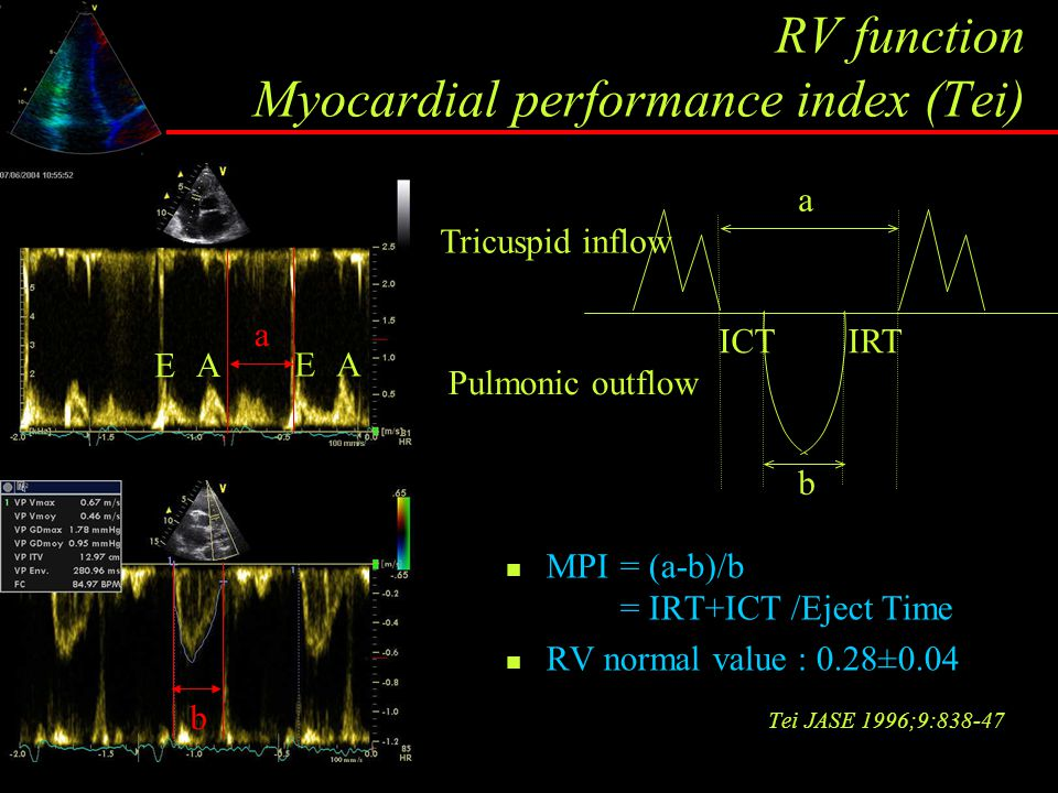 RV function Myocardial performance index (Tei)