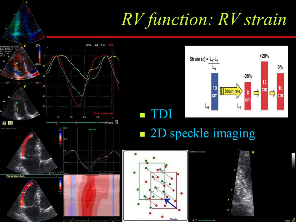 RV function: RV strain TDI 2D speckle imaging