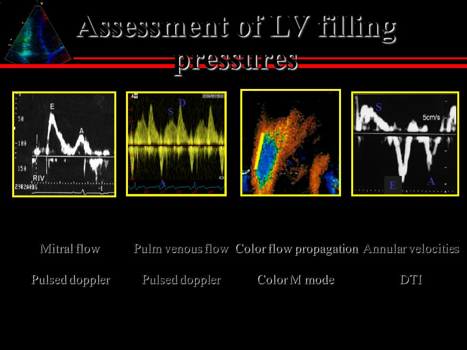 Assessment of LV filling pressures