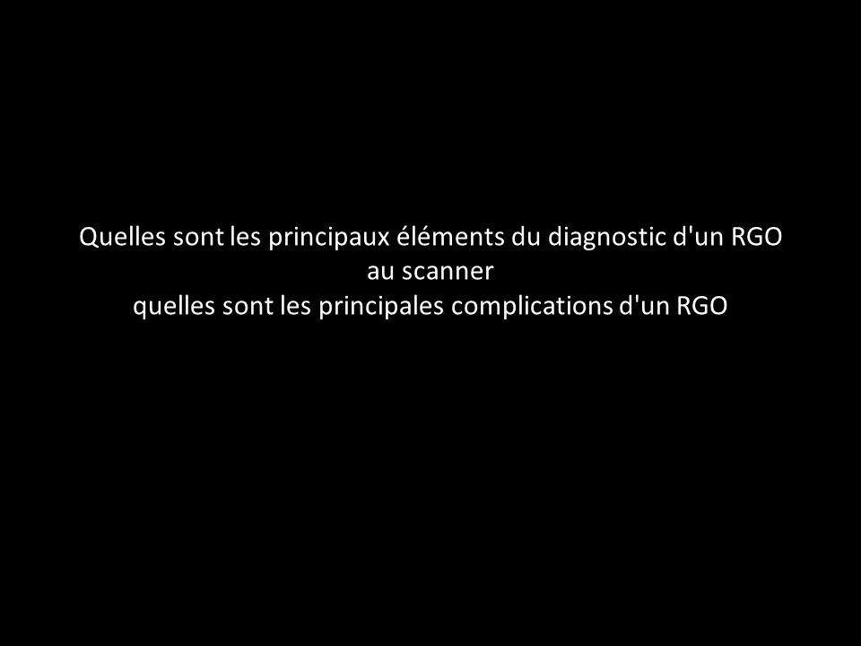 Quelles sont les principaux éléments du diagnostic d un RGO au scanner quelles sont les principales complications d un RGO