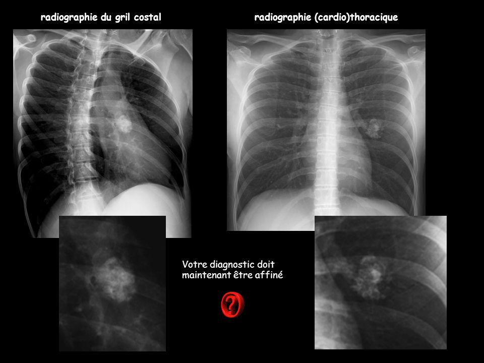 radiographie du gril costal