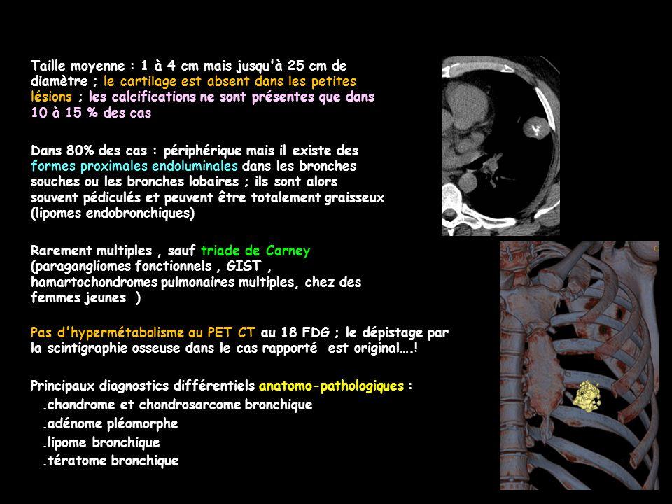 Taille moyenne : 1 à 4 cm mais jusqu à 25 cm de diamètre ; le cartilage est absent dans les petites lésions ; les calcifications ne sont présentes que dans 10 à 15 % des cas