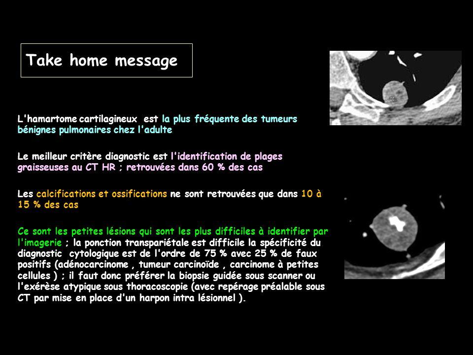 Take home message L hamartome cartilagineux est la plus fréquente des tumeurs bénignes pulmonaires chez l adulte.