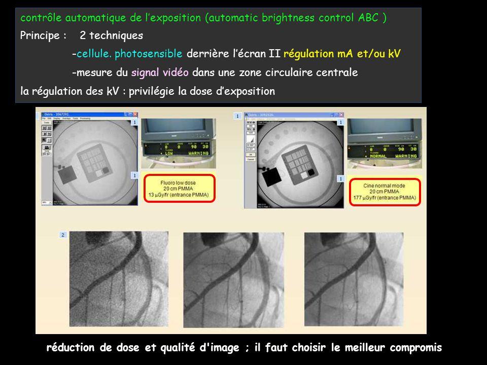 contrôle automatique de l'exposition (automatic brightness control ABC )