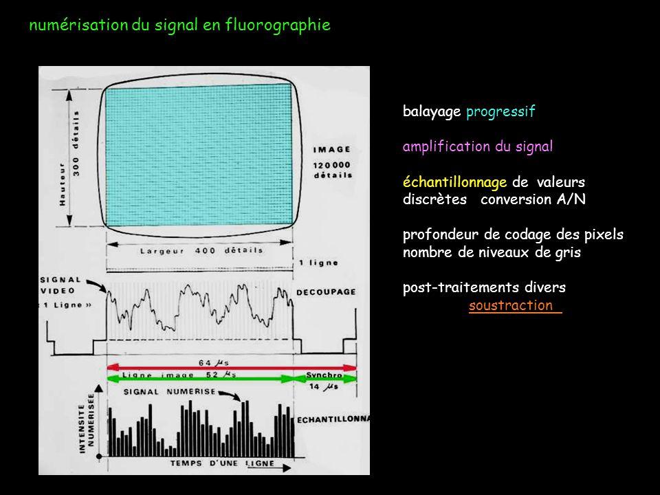 numérisation du signal en fluorographie