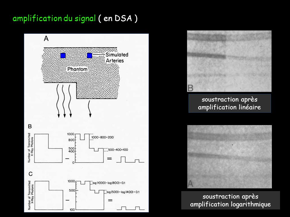 amplification du signal ( en DSA )
