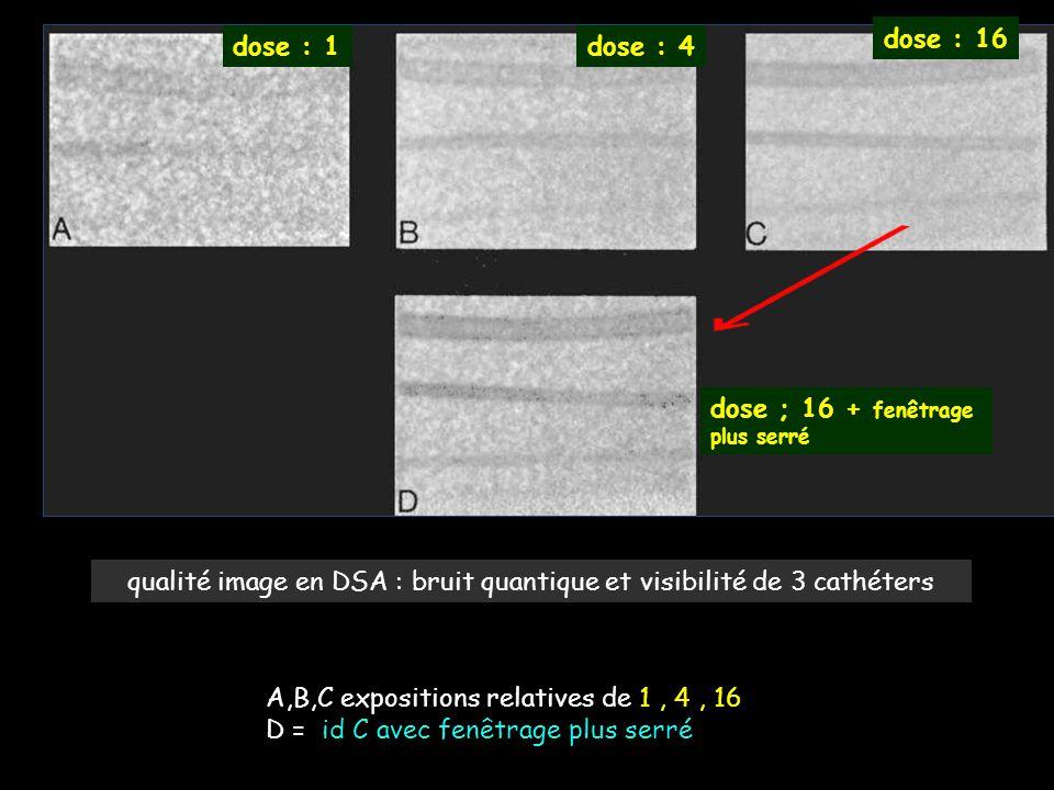 qualité image en DSA : bruit quantique et visibilité de 3 cathéters