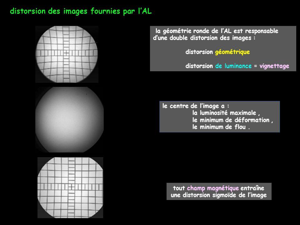 tout champ magnétique entraîne une distorsion sigmoïde de l'image