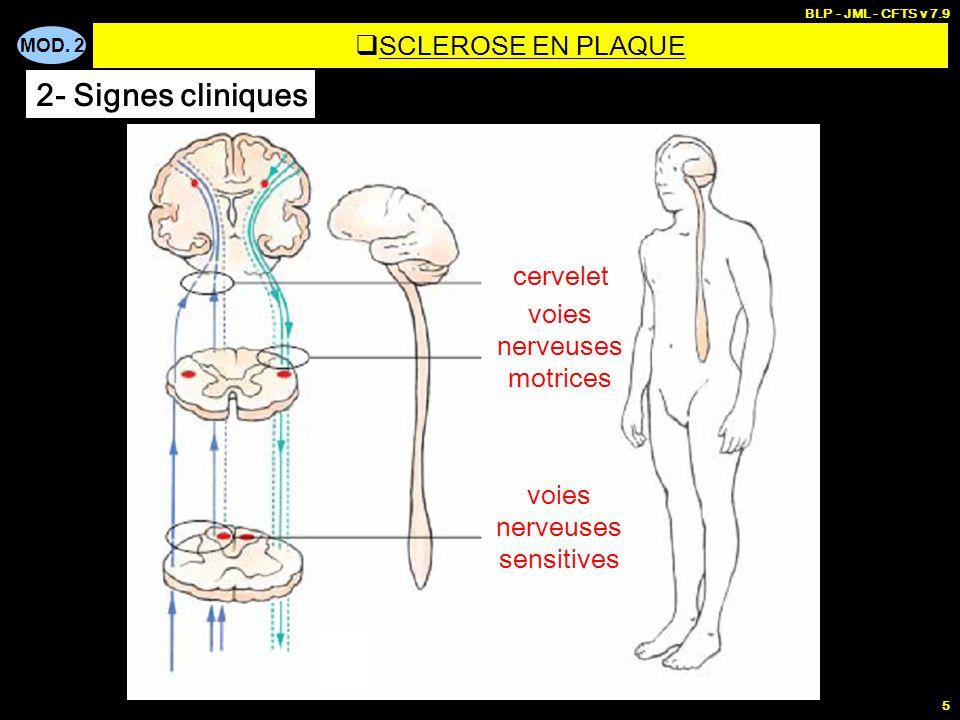 2- Signes cliniques SCLEROSE EN PLAQUE cervelet