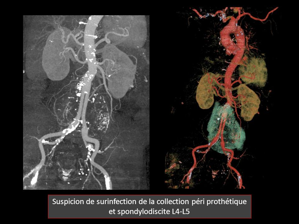 Suspicion de surinfection de la collection péri prothétique et spondylodiscite L4-L5