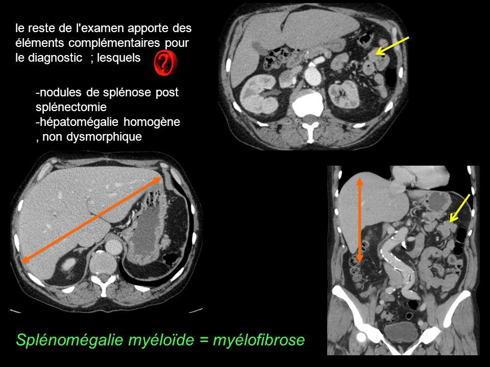 Splénomégalie myéloïde = myélofibrose
