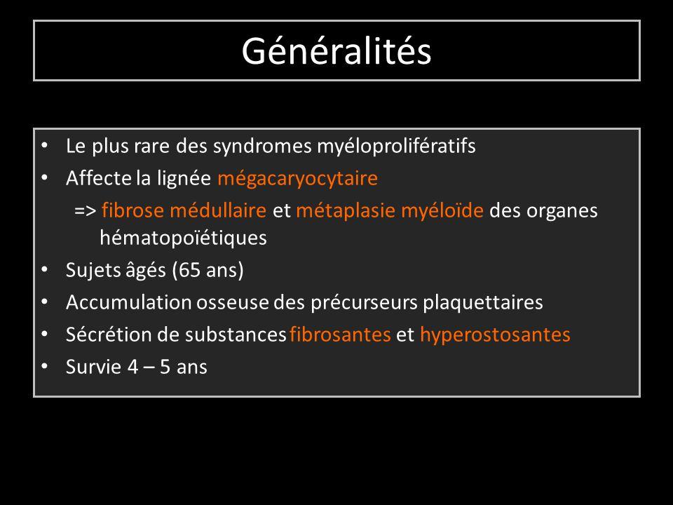 Généralités Le plus rare des syndromes myéloprolifératifs