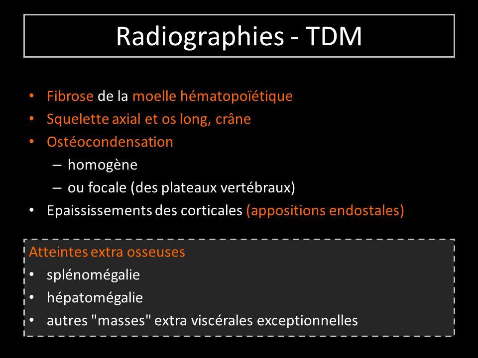 Radiographies - TDM Fibrose de la moelle hématopoïétique