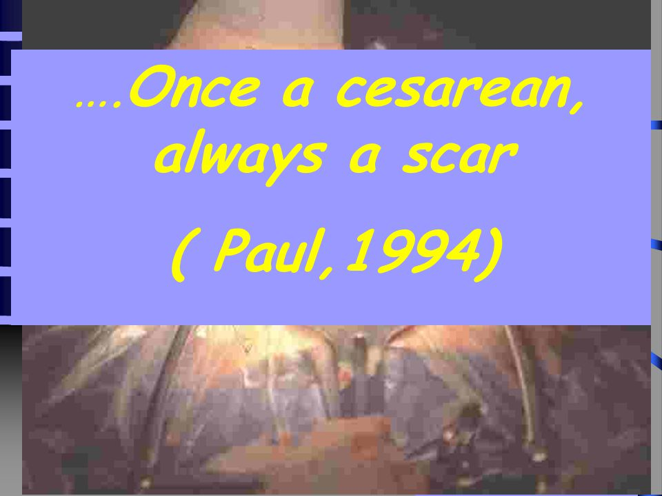 ….Once a cesarean, always a scar