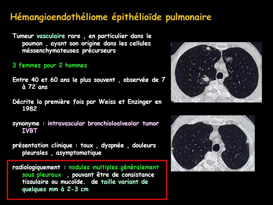 Tumeur vasculaire rare , en particulier dans le poumon , ayant son origine dans les cellules méssenchymateuses précurseurs 3 femmes pour 2 hommes Entre 40 et 60 ans le plus souvent , observée de 7 à 72 ans Décrite la première fois par Weiss et Enzinger en 1982 synonyme : intravascular bronchioloalveolar tumor IVBT présentation clinique : toux , dyspnée , douleurs pleurales , asymptomatique radiologiquement : nodules multiples généralement sous pleuraux , pouvant être de consistance tissulaire ou mucoïde.
