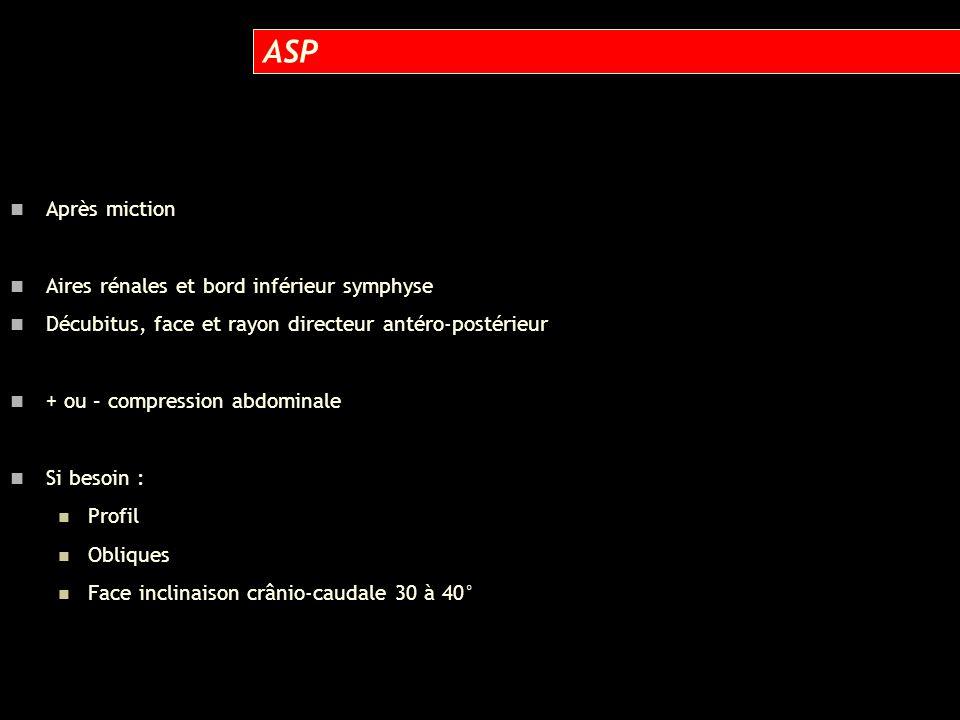 ASP Après miction Aires rénales et bord inférieur symphyse