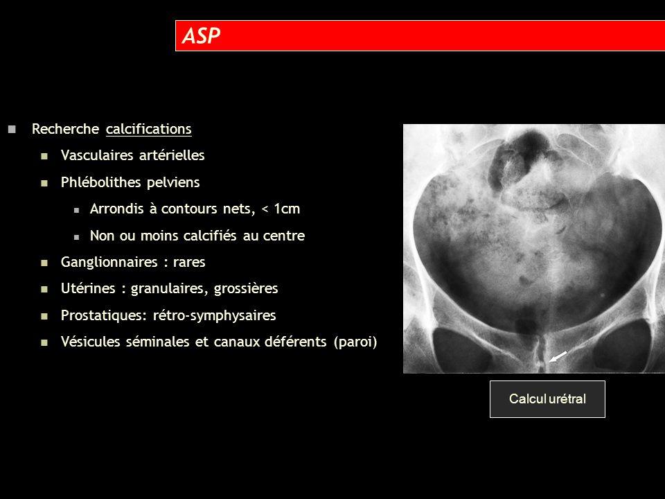 ASP Recherche calcifications Vasculaires artérielles