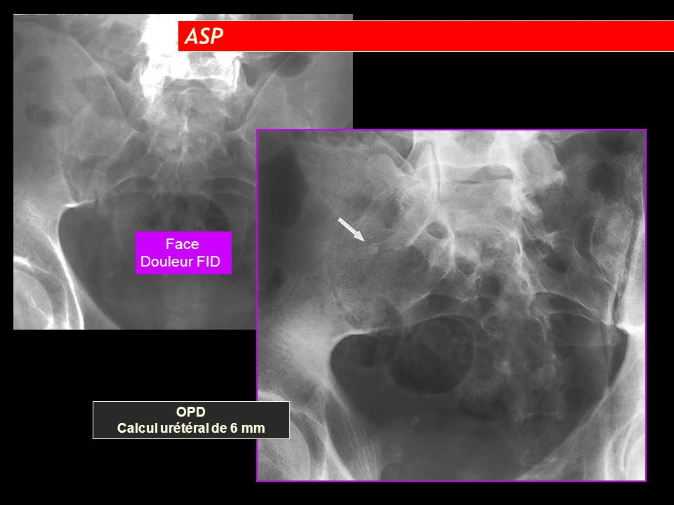 ASP Face Douleur FID OPD Calcul urétéral de 6 mm