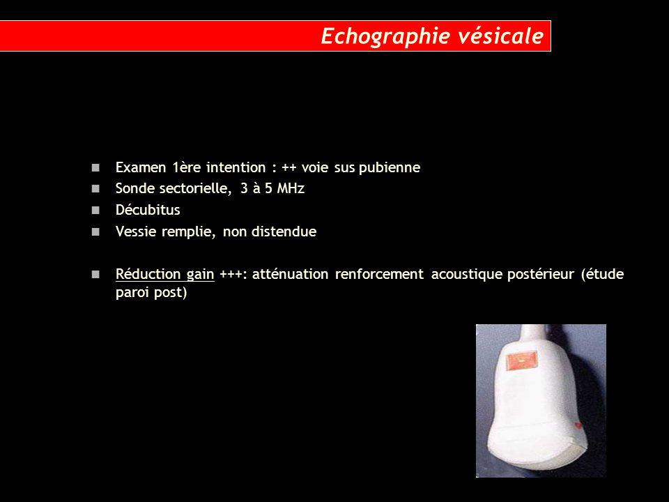 Echographie vésicale Examen 1ère intention : ++ voie sus pubienne