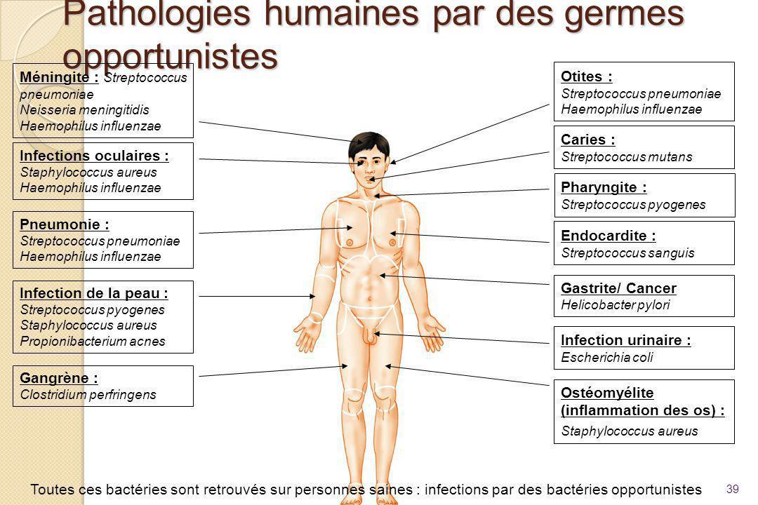 Pathologies humaines par des germes opportunistes