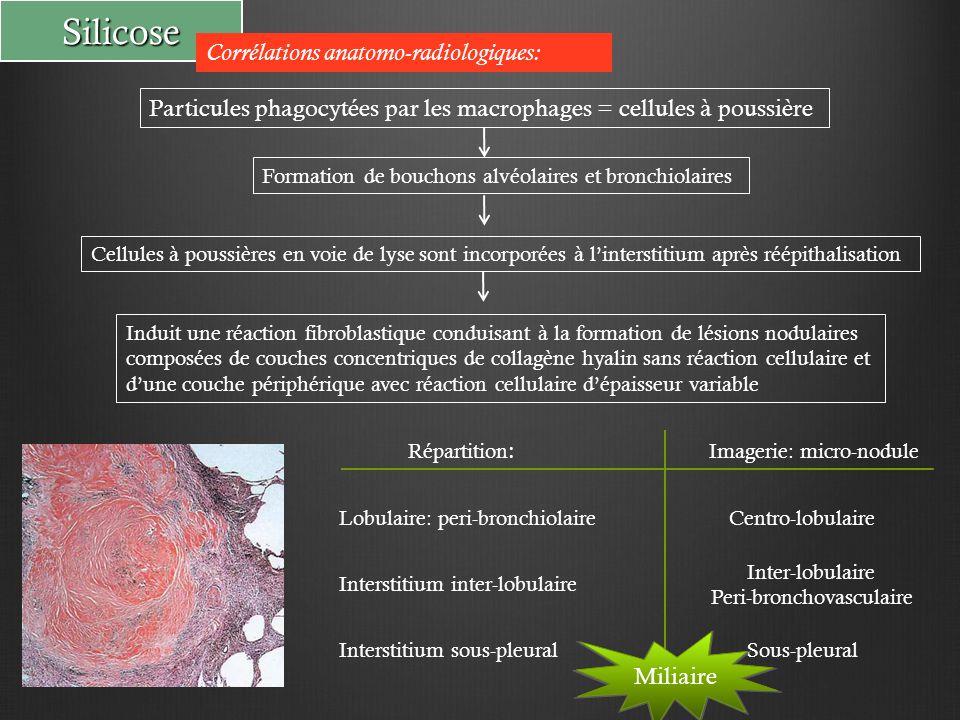 Peri-bronchovasculaire