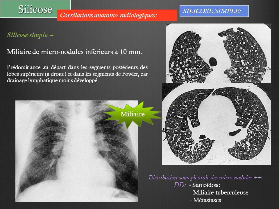 Silicose SILICOSE SIMPLE: Corrélations anatomo-radiologiques: