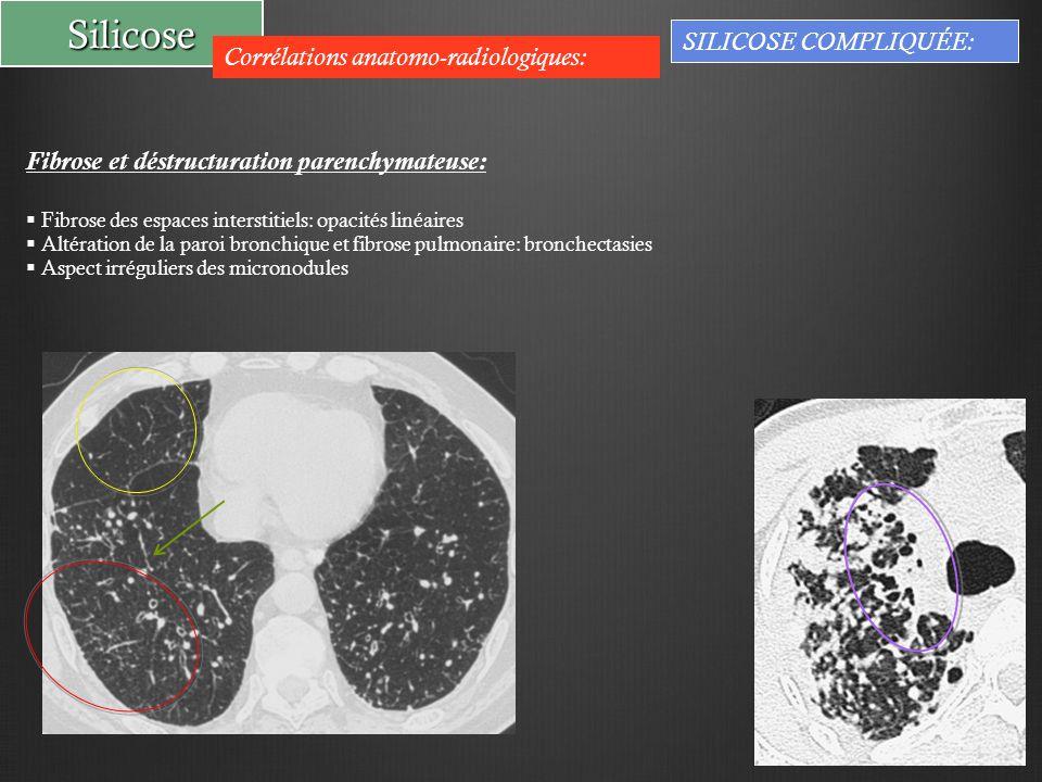 Silicose SILICOSE COMPLIQUÉE: Corrélations anatomo-radiologiques: