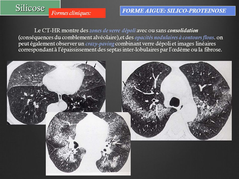 Silicose FORME AIGUE: SILICO-PROTEINOSE. Formes cliniques: