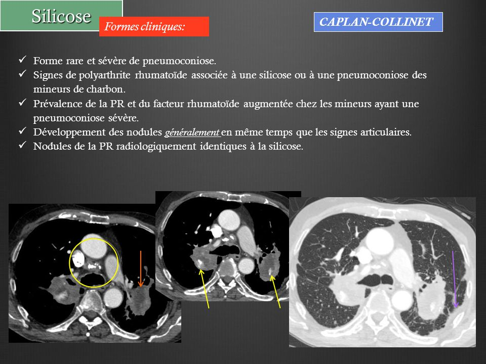 Silicose CAPLAN-COLLINET Formes cliniques: