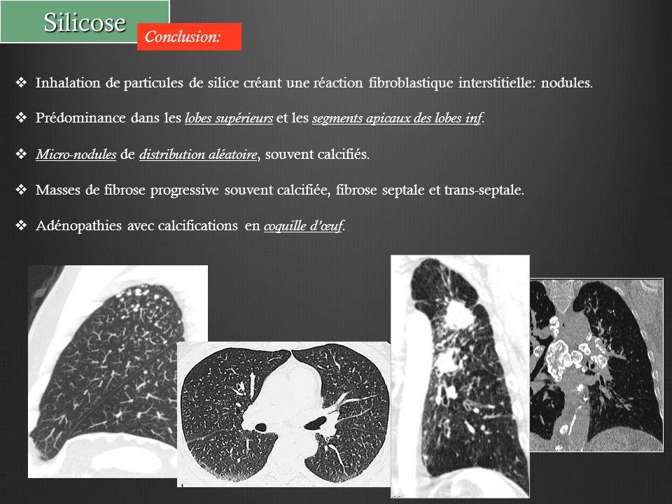 Silicose Conclusion: Inhalation de particules de silice créant une réaction fibroblastique interstitielle: nodules.