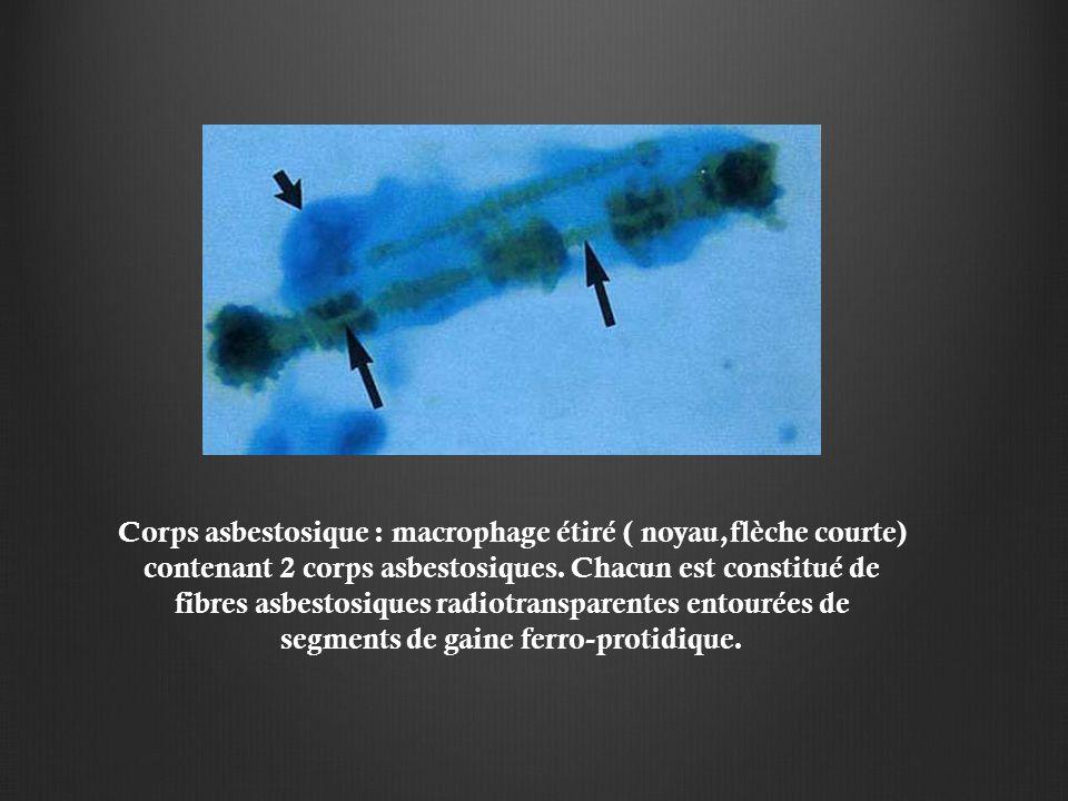 Corps asbestosique : macrophage étiré ( noyau,flèche courte) contenant 2 corps asbestosiques.