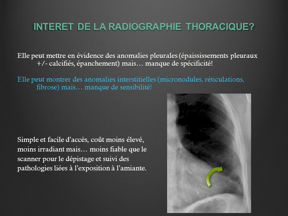 INTERET DE LA RADIOGRAPHIE THORACIQUE