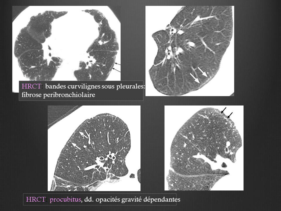 HRCT: bandes curvilignes sous pleurales: fibrose peribronchiolaire