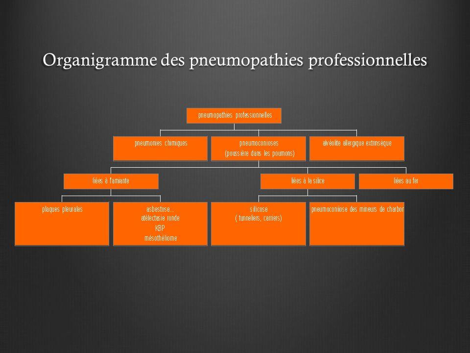 Organigramme des pneumopathies professionnelles