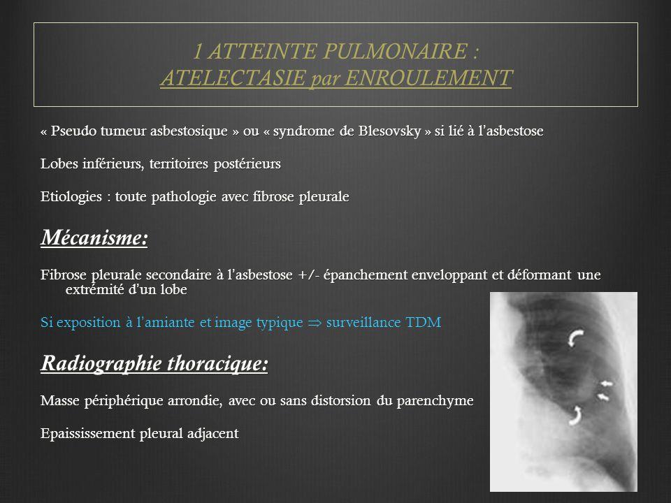 1 ATTEINTE PULMONAIRE : ATELECTASIE par ENROULEMENT