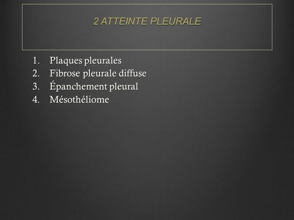 2 ATTEINTE PLEURALE Plaques pleurales Fibrose pleurale diffuse Épanchement pleural Mésothéliome
