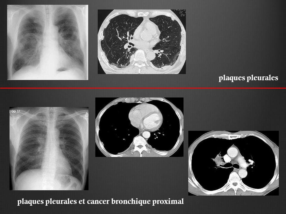 plaques pleurales plaques pleurales et cancer bronchique proximal