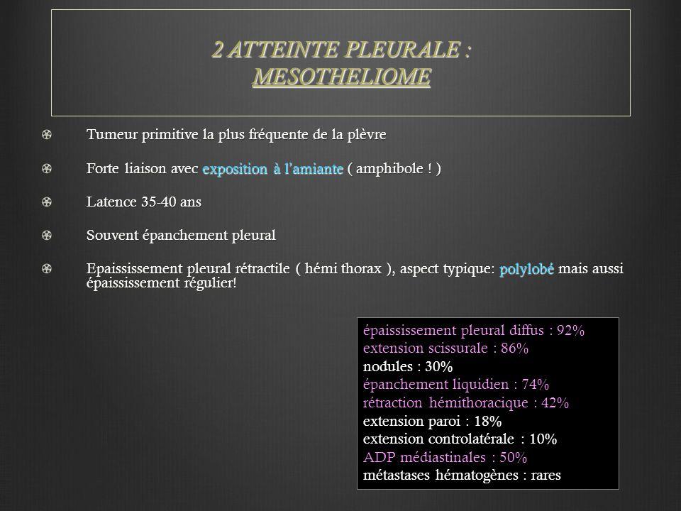 2 ATTEINTE PLEURALE : MESOTHELIOME