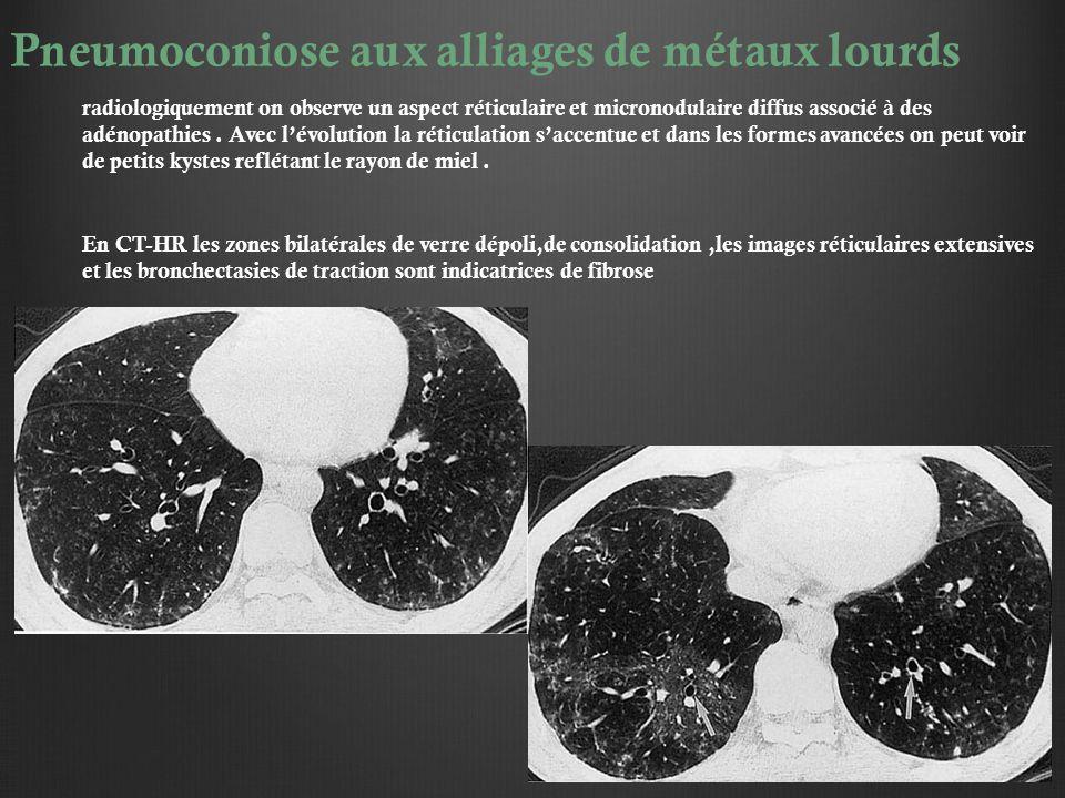 Pneumoconiose aux alliages de métaux lourds