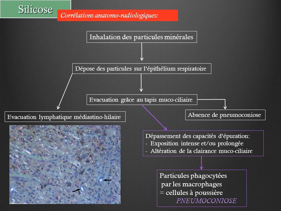 Silicose Corrélations anatomo-radiologiques: