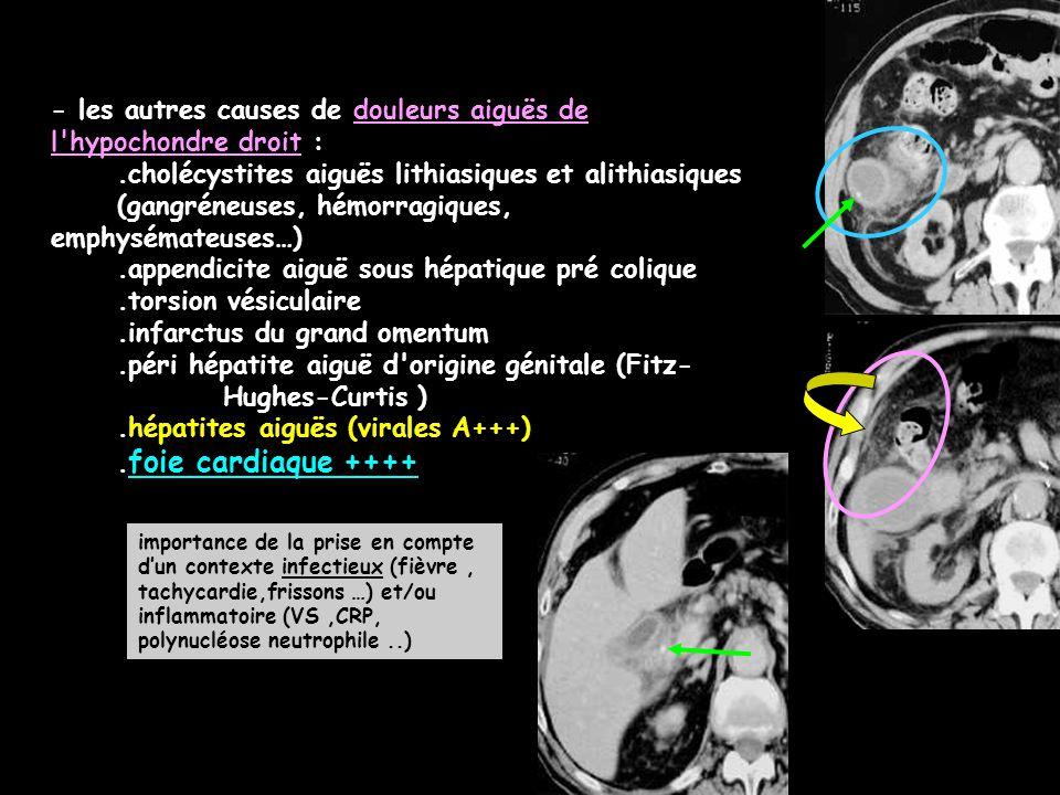 - les autres causes de douleurs aiguës de l hypochondre droit :