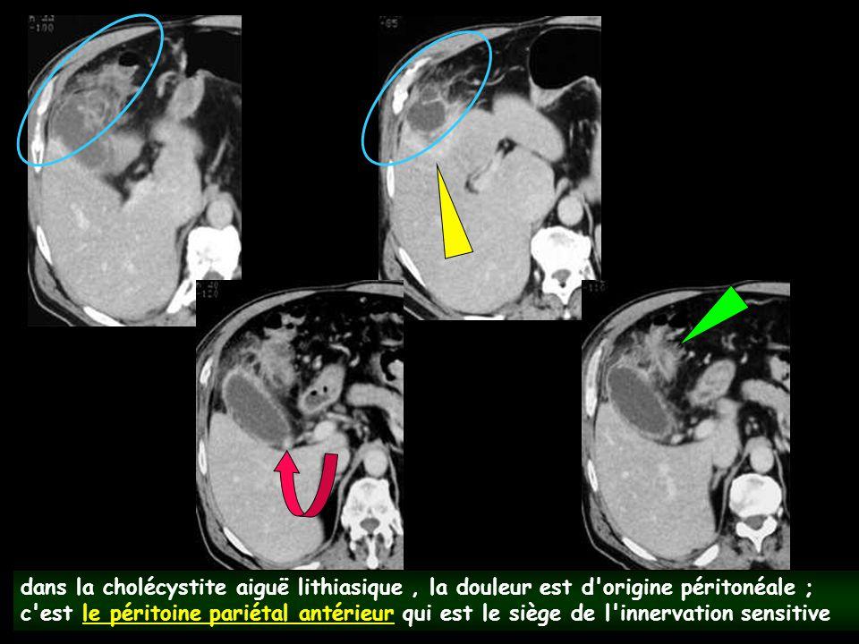 dans la cholécystite aiguë lithiasique , la douleur est d origine péritonéale ; c est le péritoine pariétal antérieur qui est le siège de l innervation sensitive