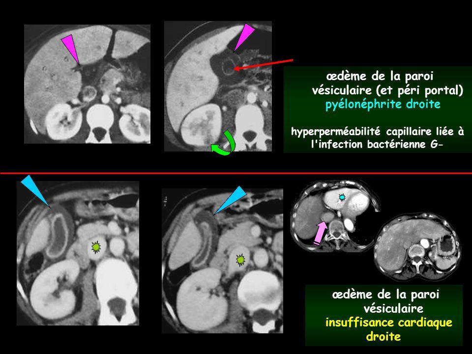 vésiculaire (et péri portal) pyélonéphrite droite