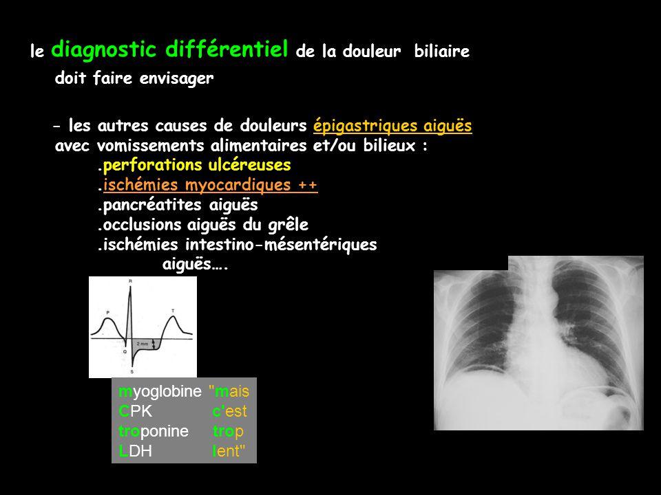 le diagnostic différentiel de la douleur biliaire doit faire envisager