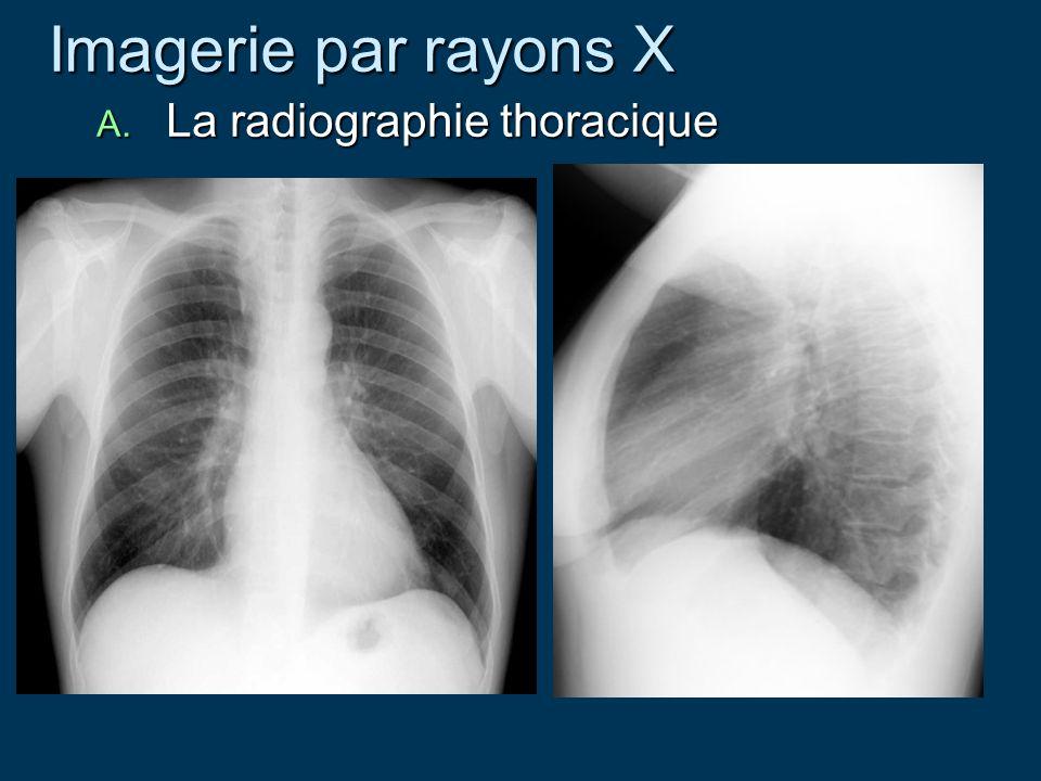 Imagerie par rayons X La radiographie thoracique