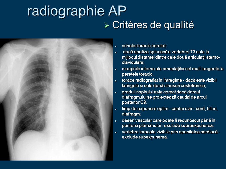 radiographie AP Critères de qualité schelet toracic nerotat: