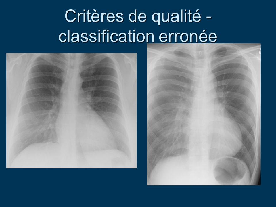 Critères de qualité - classification erronée