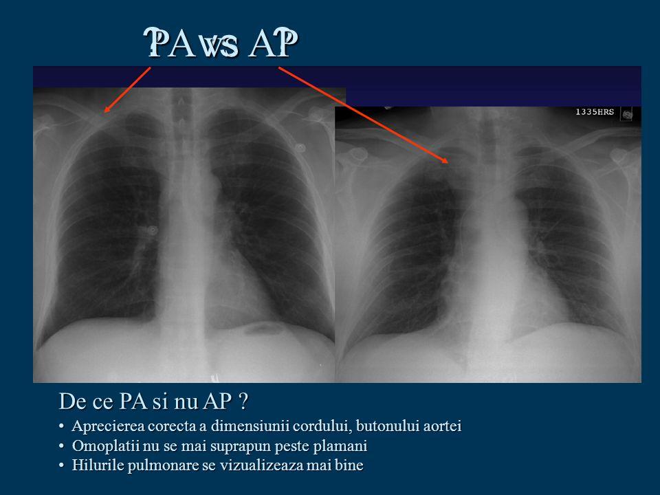 vs PA vs AP De ce PA si nu AP