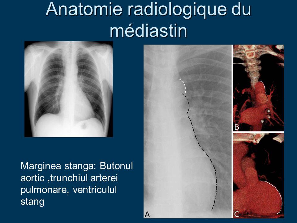 Anatomie radiologique du médiastin